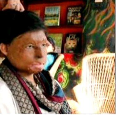 Femme vitriplée en Inde